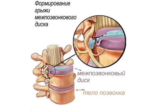 Болит шея отдает в голову с одной стороны