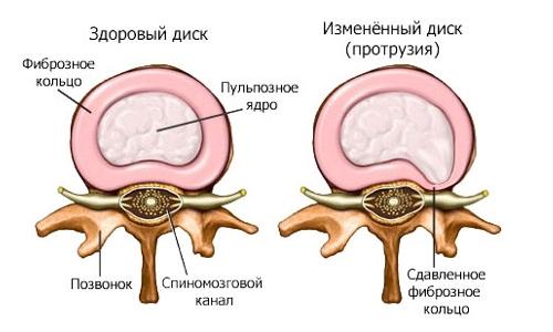 Протрузия межпозвонкового диска