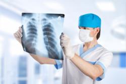 Диагностика остеохондроза грудного отдела позвоночника