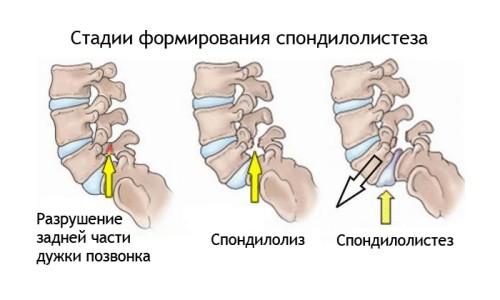 Стадии формирования спондилолистеза